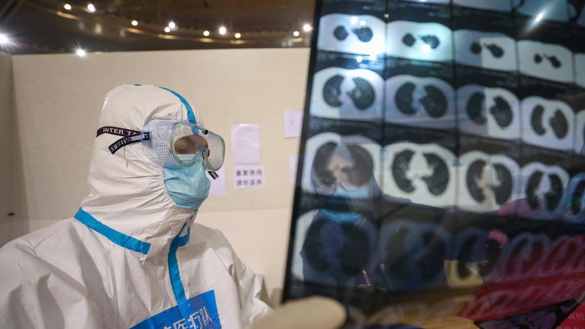 A doctor checks a patient's CT scan at a temporary hospital set up for Covid-19-infected patients in Wuhan, China.